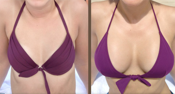 fat transfer breast augmentation results