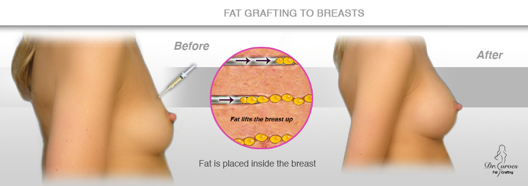 fat grafting breast augmentation in Singapore