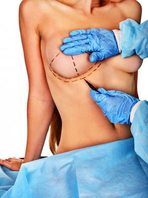 Doctor makes dotted line on female breast .