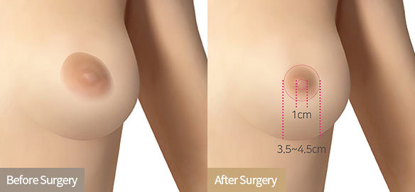 breast augmentation singapore