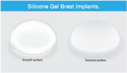 implant-texture