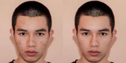 acne-scar-before-after