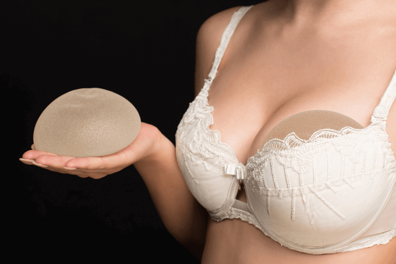 breast augmentation with implants faqs