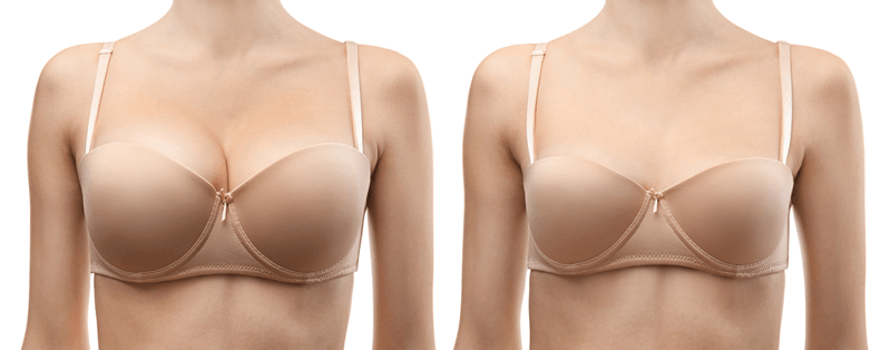 getting breast implants before and after