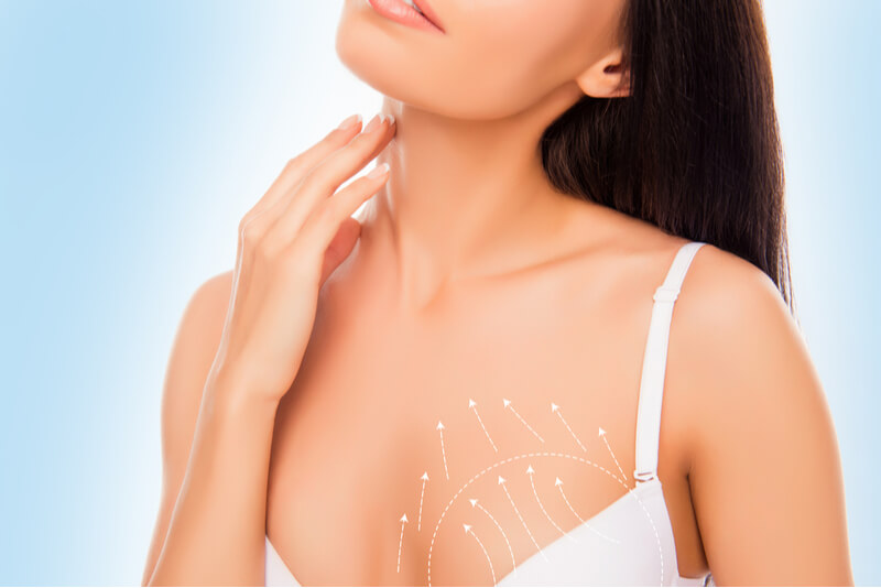 Why you should consider a breastlift